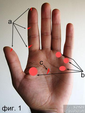 Фиг.1 - Най-честите наранявания с нож на ръката