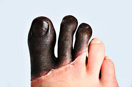 Измръзнали пръсти